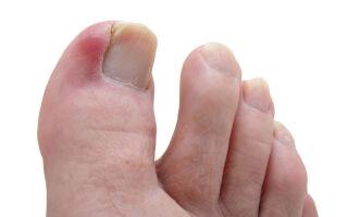 Виды панариция на пальце ноги: когда можно заниматься самолечением