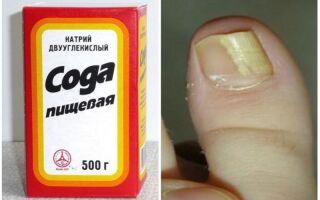 Терапия микоза ногтей содой: рецепты, рекомендации и противопоказания