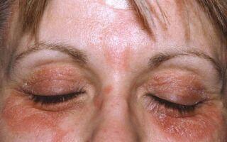 Методы лечения и причины возникновения дерматита вокруг глаз