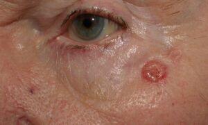 Стадии развития, методы лечения и виды базалиомы кожи