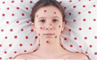 Особенности заболевания и лечения ветряной оспы у подростков