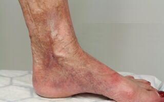 Методы лечения варикозной экземы на ногах