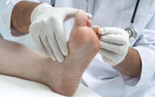 Правильное лечение бородавки на пальце ноги