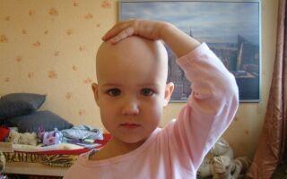 Лечение алопеции у ребенка