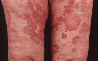 Разновидности и особенности лечения кожных васкулитов