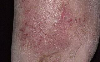 Способы лечения экзематозного дерматита