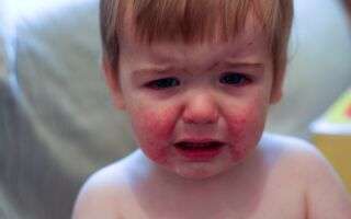 Парвовирусная инфекция