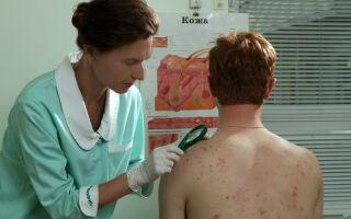 К каким врачам обращаться при проявлениях герпеса?