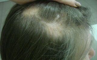 Лечение алопеции у женщин в домашних условиях