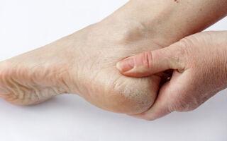Понятие и лечение подошвенного гиперкератоза