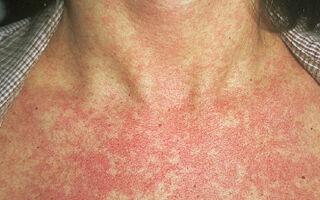 Причины возникновения вирусного дерматита и его лечение и