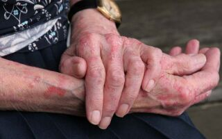 Особенности проявления и лечение чесотки на руках у детей и взрослых