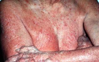 Симптомы и лечение грибовидного микоза