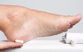 Как навсегда избавиться от грибка стопы — наилучшие методы лечения в домашних условиях