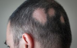 Симптомы стригущего лишая и лечение заболевания