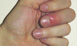 Что делать при появлении гнойника на пальце руки и как его лечить