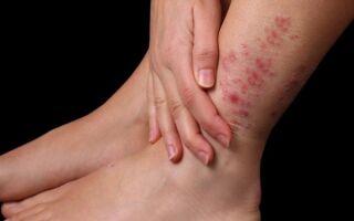Как унять зудение кожи при псориазе