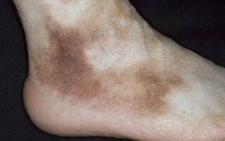Причины появления пигментных пятен на ногах и способы их удаления