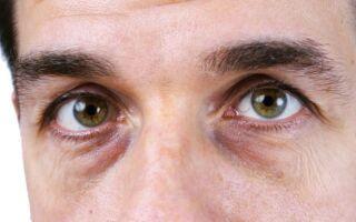 Причины появления синяков под глазами у мужчин и их лечение