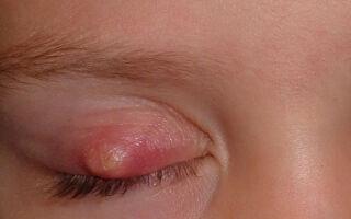 Симптомы и лечение гнойника на веке
