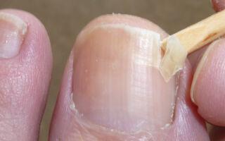 Причины и способы лечения отслоения ногтей на ногах