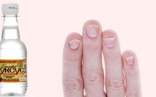 Использование уксусов при терапии микоза ногтей