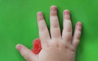 Возможные причины расслаивания ногтей у ребенка на руках и методы укрепления ногтевой пластины