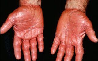 Причины появления пальмарной эритемы и ее лечение