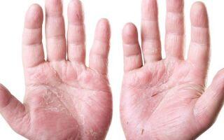Мази и кремы для лечения дерматита на руках