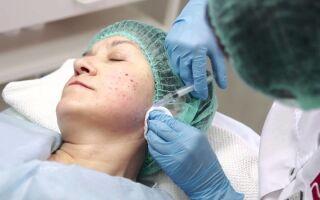 Мезотерапия — надежный метод лечения акне