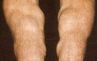 Понятие липоматоза, его виды и  способы лечения