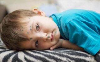 Сколько болеют ветряной оспой взрослые и дети