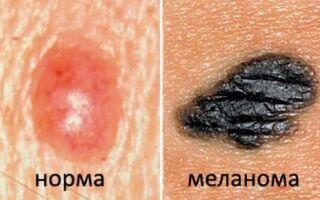 Обследование невусов на онкологические заболевания