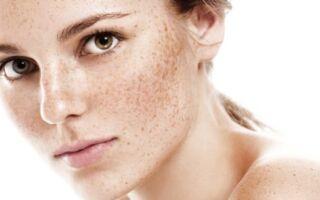 Особенности лазерного удаления пигментных пятен на лице