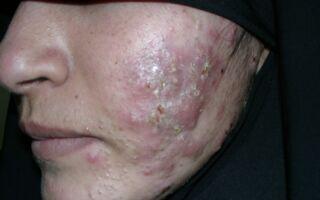 Симптомы и лечение кистозного акне