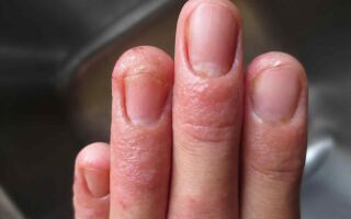 Эффективные методы лечения микоза на пальцах рук