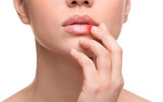 Повреждение везикулы герпеса — причина распространения  сыпи по телу