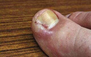 Эффективные методы лечения нарыва на пальце ноги в домашних условиях