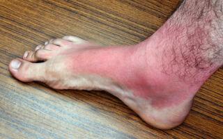 Причины и симптомы возникновения рожистых воспалений, их виды