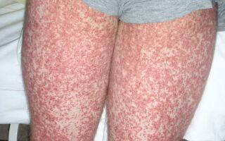 Опасность геморрагического васкулита — болезни Шенлейна-Геноха