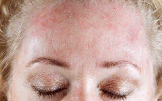 Симптомы и методы лечения грибка на лице