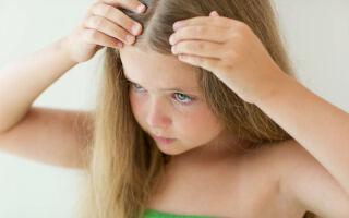 Причины появления перхоти у детей и подростков, методы лечения недуга