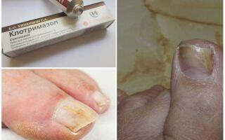 Преимущества терапии грибковых заболеваний ногтей Клотримазолом