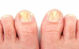 Основные причины и механизм развития грибка на ногтях ног