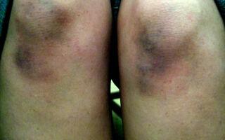 Возможные причины появления синяков на коленях и их лечение