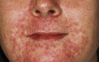 Народные рецепты улучшающие и ускоряющие лечение при дерматитах