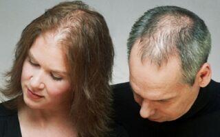 Лечение андрогенной алопеции у мужчин и женщин