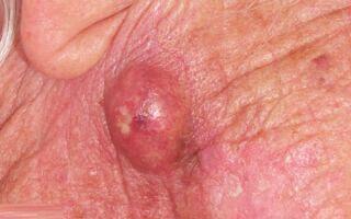 Атерома в международной классификации болезней МКБ-10