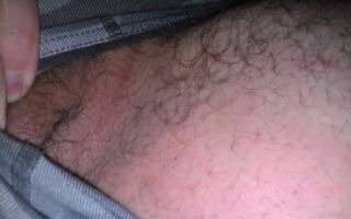 Характерные симптомы и лечение паховой эпидермофитии