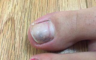 Как выглядит меланома ногтя и что делать при обнаружении